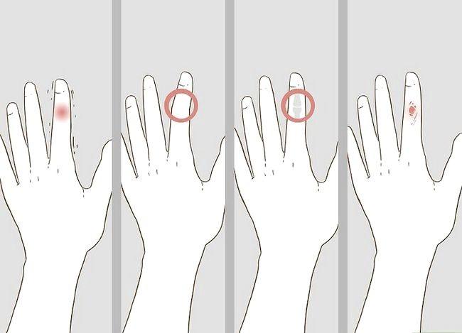 Imaginea intitulată Determinarea dacă un deget este rupt Pasul 13