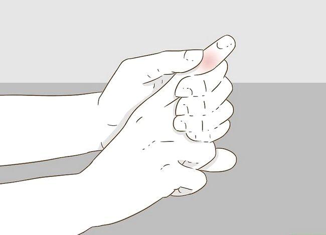 Imaginea intitulată Determinarea dacă un deget este rupt Pasul 14