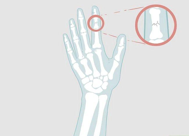 Imaginea intitulată Determinarea dacă un deget este rupt Pasul 15