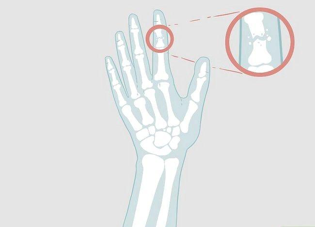 Imaginea intitulată Determinarea dacă un deget este rupt Pasul 16