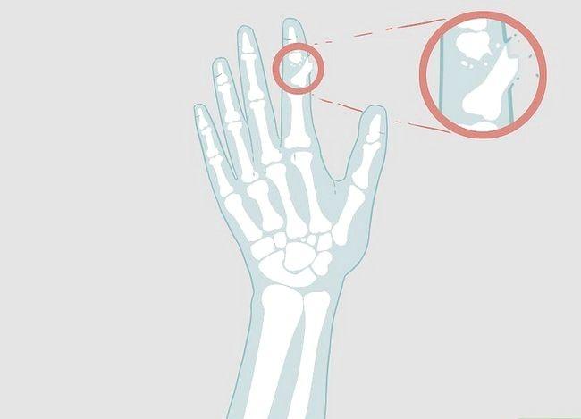 Imaginea intitulată Determinarea dacă un deget este rupt Pasul 17