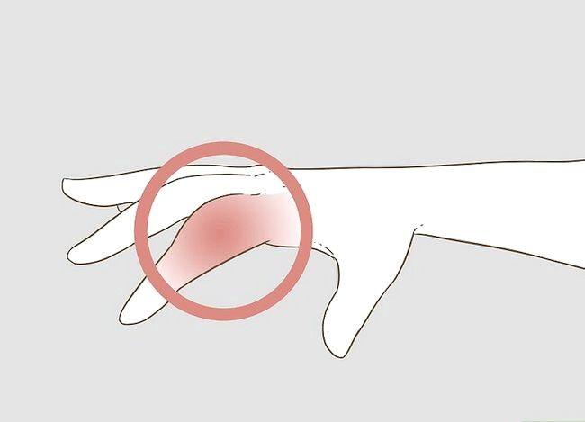 Imaginea intitulată Determinarea dacă un deget este rupt Pasul 2