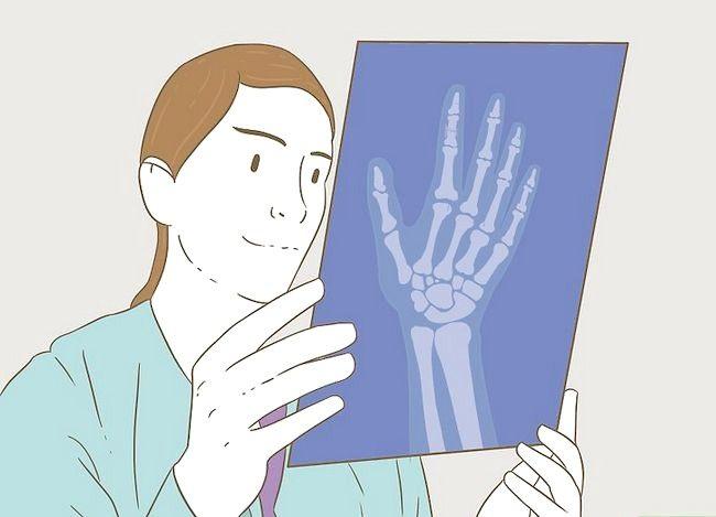 Imaginea intitulată Determinarea dacă un deget este rupt Pasul 6