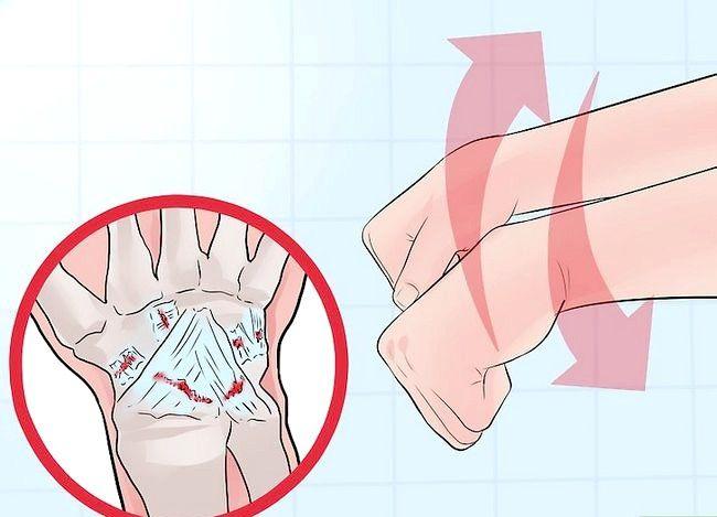 Imaginea intitulată Spuneți diferența dintre încheietura mâinii și o fractură a încheieturii mâinii Pasul 1