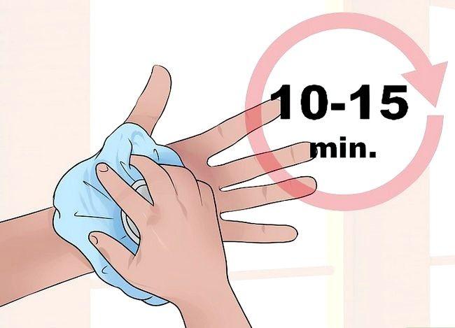 Imaginea intitulată Spuneți diferența dintre entorsa încheieturii mâinii și o fractură a încheieturii mâinii Pasul 3
