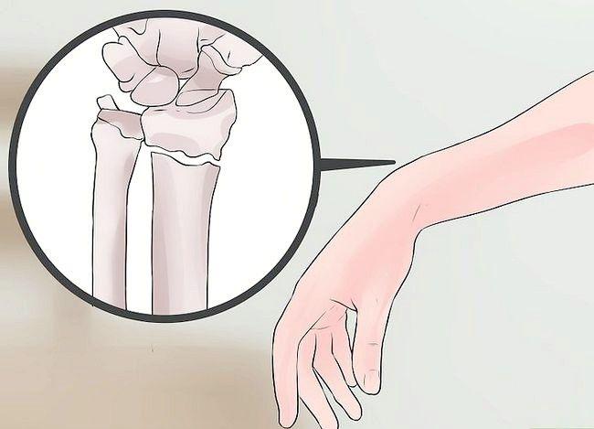 Image cu titlul Spuneți diferența dintre entorsa încheieturii mâinii și o fractură a încheieturii mâinii Pasul 6