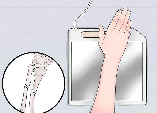 Imaginea intitulată Spuneți diferența dintre încheietura mâinii și o fractură a încheieturii mâinii Pasul 9