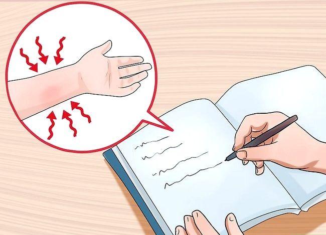 Image cu titlul Diagnosticul sindromului de tunel carpian Pasul 3