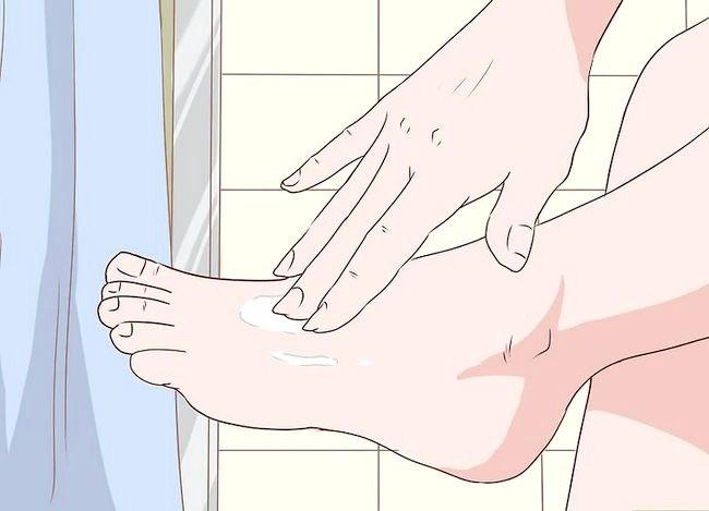 Imaginea intitulată Prevenirea infecțiilor cutanate Pasul 7