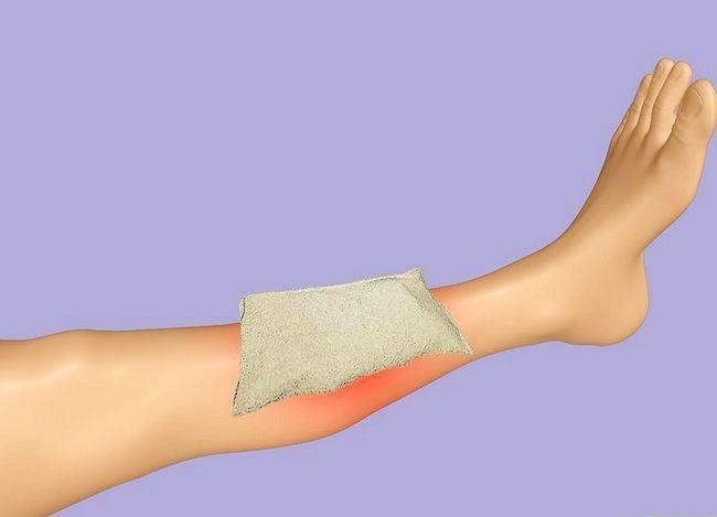 Imagine cu titlul Treat Shin Splints Pasul 2