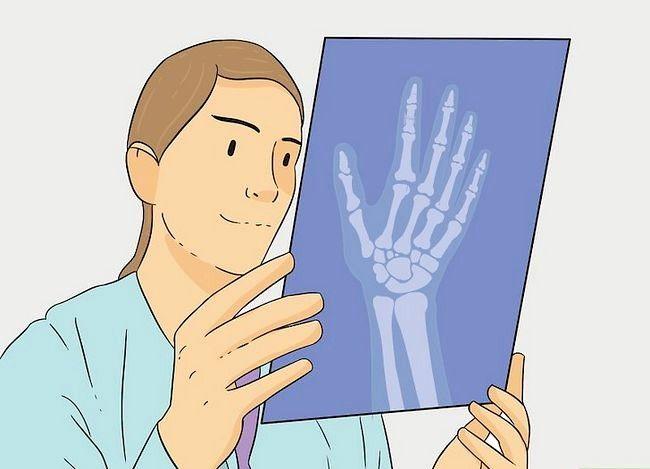Imaginea cu titlul Diagnosticarea unui pas frântat în palier 11