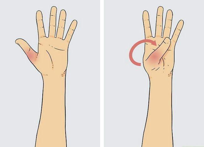 Imaginea cu titlul Diagnosticarea unei fracturi miniatură Pasul 3