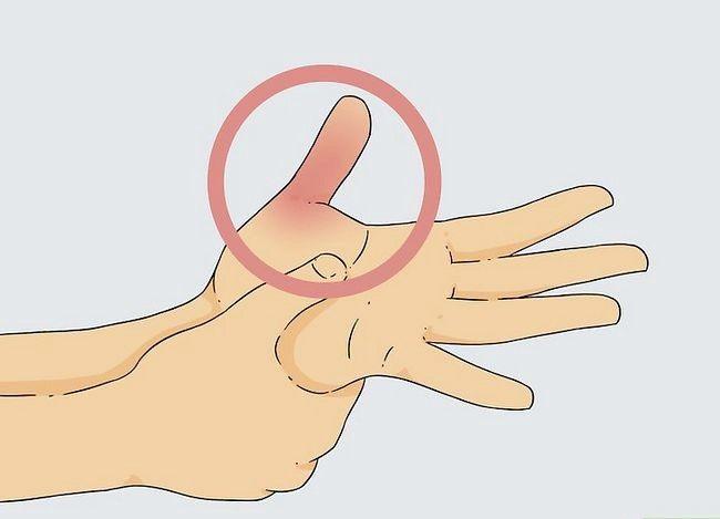 Image cu titlul Diagnosticarea unei fracturi miniatură 5