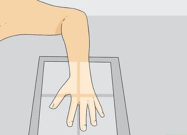 Imaginea cu titlul Diagnosticarea unei fracturi miniatură a pasului 8