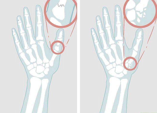 Imaginea cu titlul Diagnosticarea unei fracturi miniatură Pasul 10
