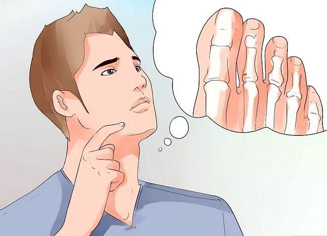 Imagine cu titlul Heal a Toe Broken Step 3