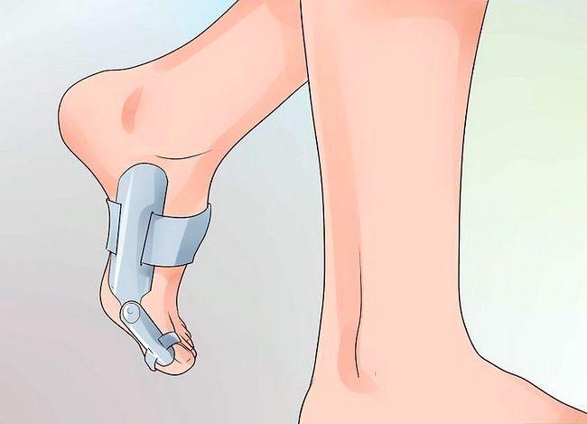 Imagine cu titlul Heal a Toe Broken Step 9