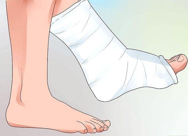 Imagine cu titlul Heal a Toe Broken Step 10