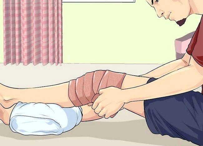 Imaginea intitulată Diagnosticarea unui mușchi de carne rupt 11