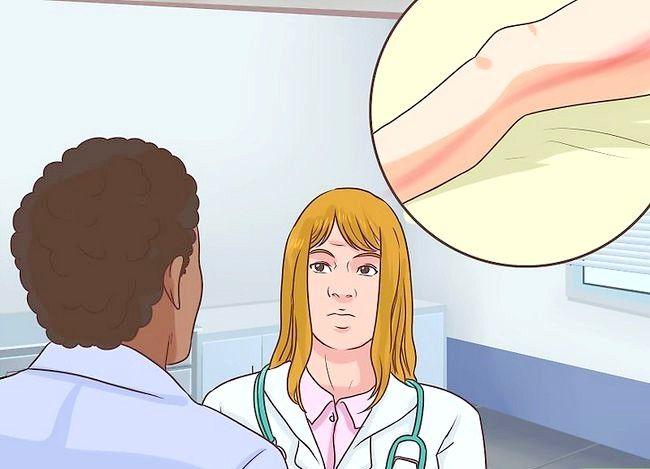 Imagine cu titlul Tratarea unui toenail rupt 11
