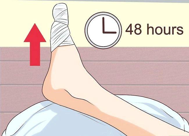 Image cu titlul Tratarea unui toenail sfâșiat