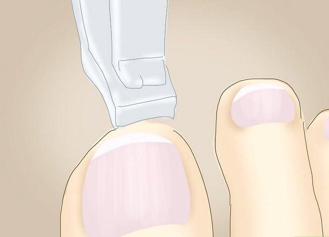 Imagine cu titlul Tratarea unei dureri în picioare Pasul 13