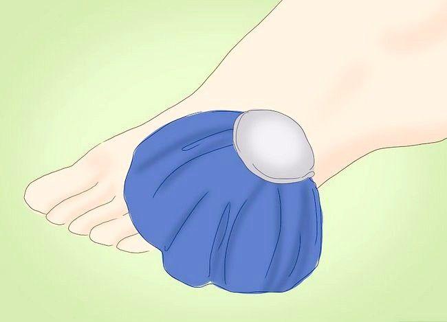 Imaginea intitulată Tratarea unei dureri în picioare Pasul 2