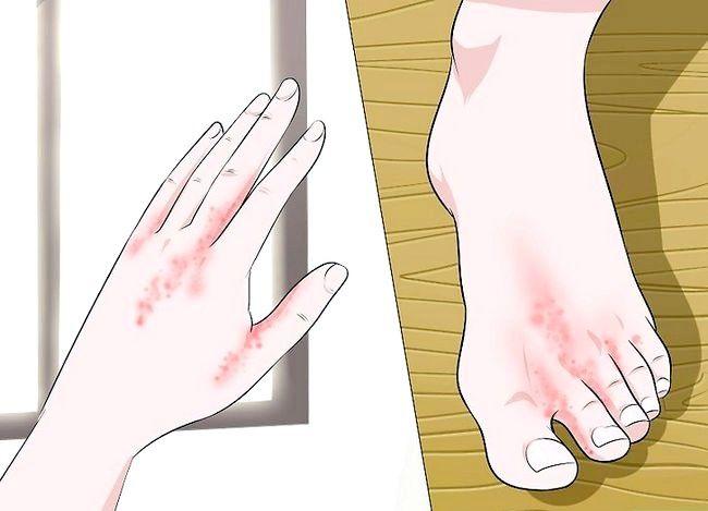 Image cu titlul Diagnosticarea unei infecții cu drojdie la domiciliu Etapa 3