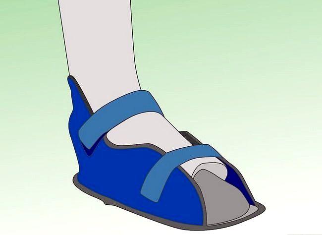Imagine cu titlul Tratarea unei fracturi de stres la picioare Pasul 6