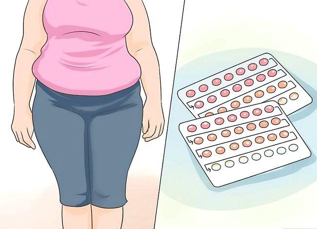 Image cu titlul Tratarea unei infecții cu drojdie Pasul 2