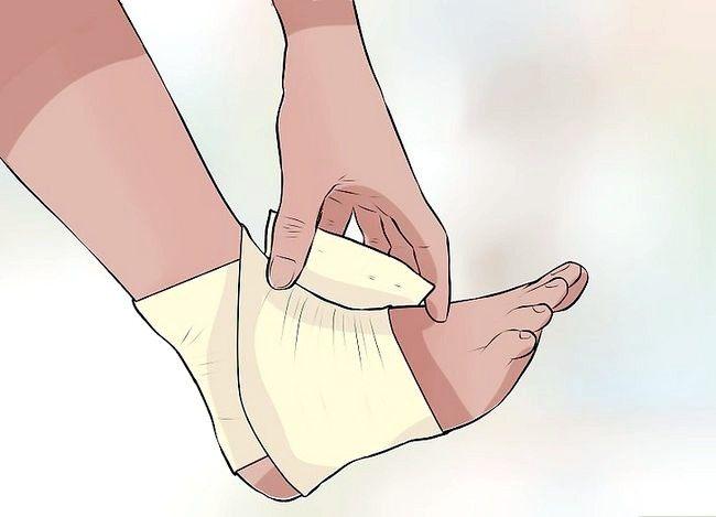 Imaginea intitulată Tratarea unei entorsații în timpul primului ajutor Pasul 4