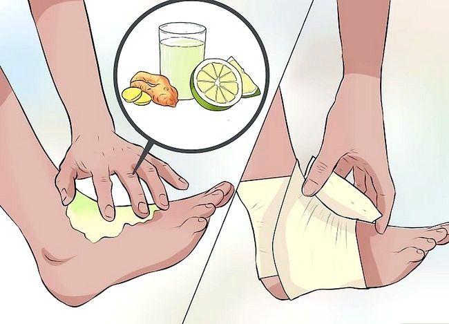 Imaginea intitulată Tratarea unei entorse în timpul primului pas Pasul 7