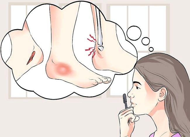 Imaginea intitulată Tratează o entorsă în timpul primului pas Pasul 10