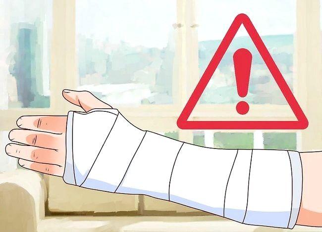 Image cu titlul Tratarea unei fracturi deschise în timpul primului ajutor Pas 14