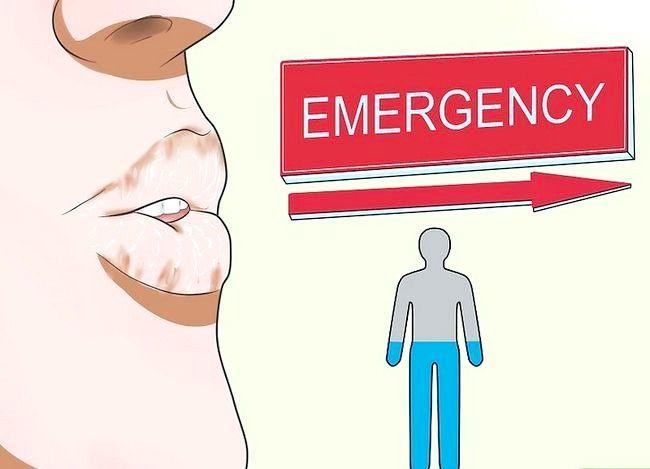 Image title Împiedicați Norovirus Pasul 13