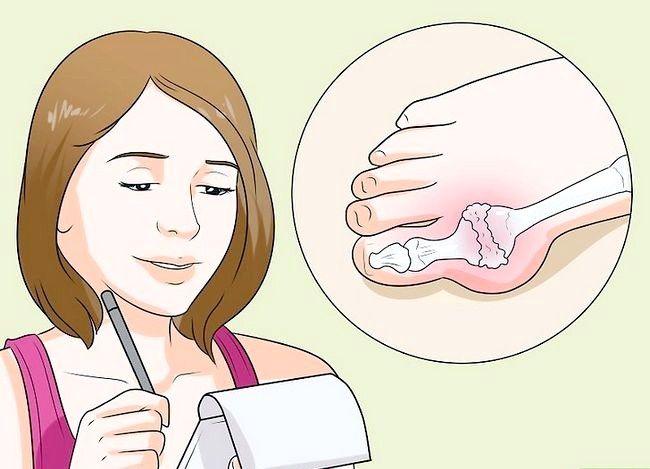 Image cu titlul Test pentru Gout Pasul 7