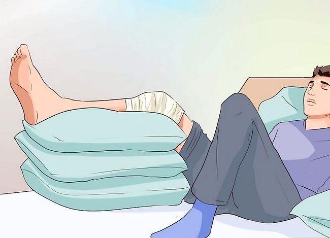Imagine cu titlul Tratarea unei entorse pentru genunchi Pas 5