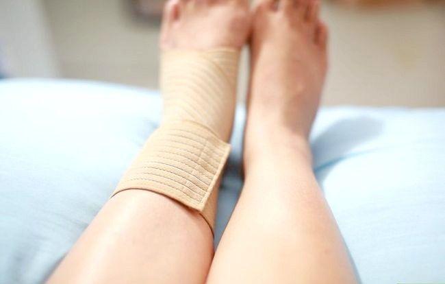 Imaginea cu titlul Gheață și rănire Pasul 15