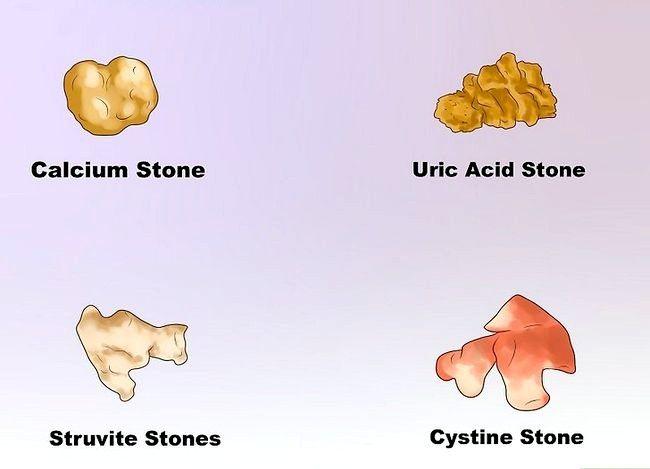 Imaginea cu titlul Dizolvați pietrele la rinichi Pasul 3