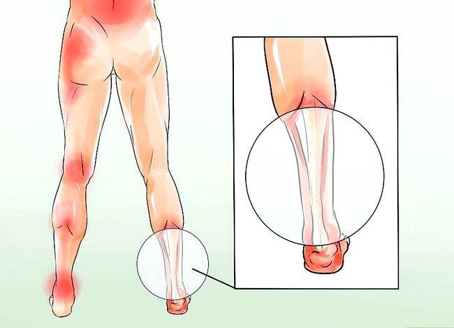 Imagine cu denumirea Fix Flat Feet Pasul 2