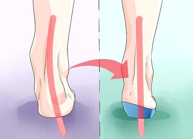 Imaginea intitulată Fix Flat Feet Pasul 6
