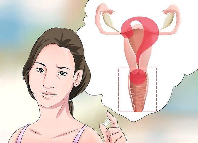 Image cu titlul Diagnostic Pasul 1: Descărcarea vaginală