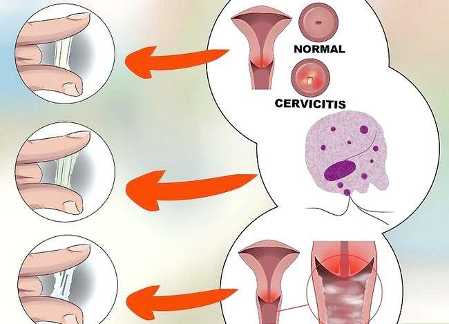 Image cu titlul Diagnostic Pasul 6 de descărcare vaginală