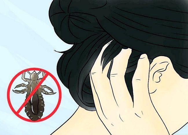 Imagine intitulată Îndepărtați-o pe Bug Bites Step 16