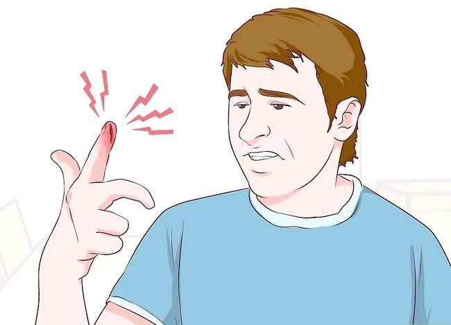 Imagine cu titlul Degete de bandaj sau degetele de la picioare Pasul 1