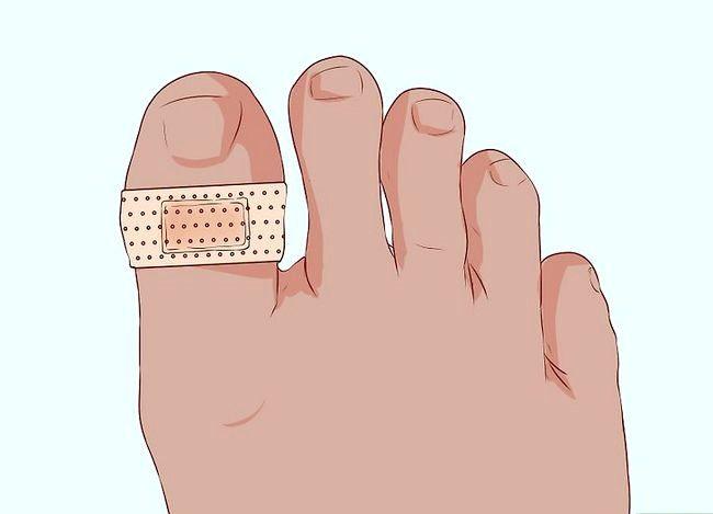 Imaginea intitulată Degetele sau degetele de bandaj Pasul 11