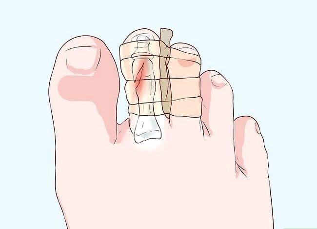 Imaginea intitulată Degetele sau degetele de la picioare Pasul 20