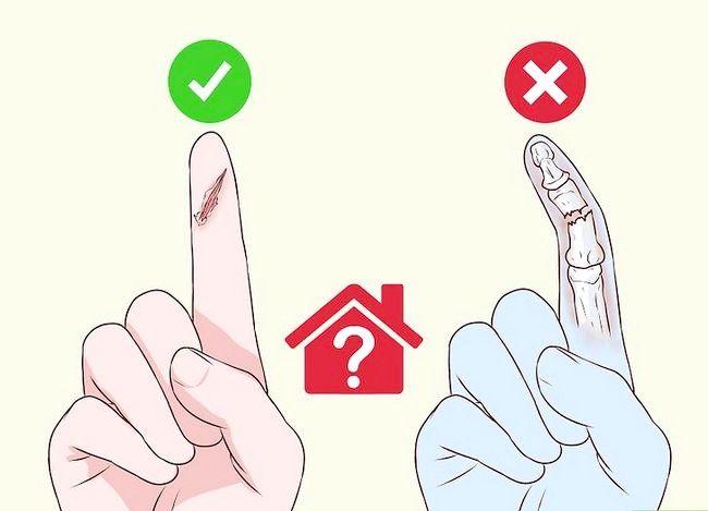 Imaginea intitulată Degete de bandaj sau degetele de la picioare Pasul 4
