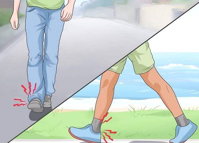 Imaginea cu titlul Spuneți dacă un picior este rupt Pasul 1