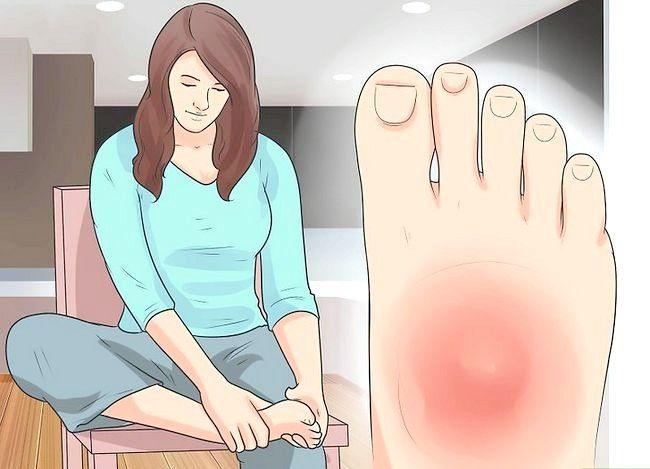 Imaginea intitulată Tratează un picior rupt Pasul 9